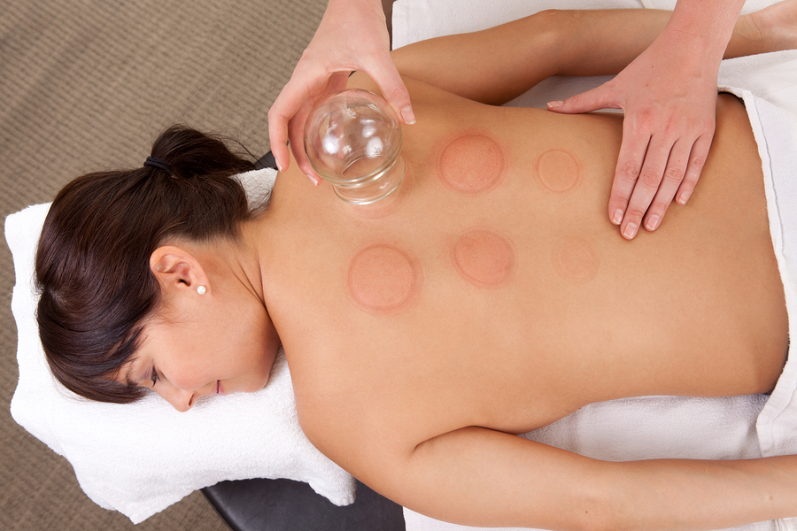 cupping massage vitalityforu